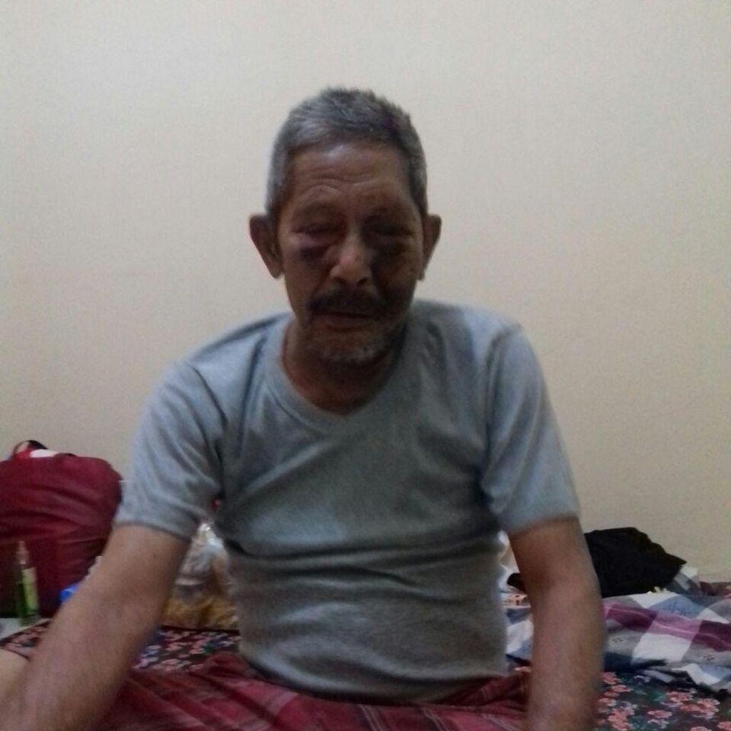 Biaya Pengobatan Kakek Hasan yang Viral Digratiskan RS Polri
