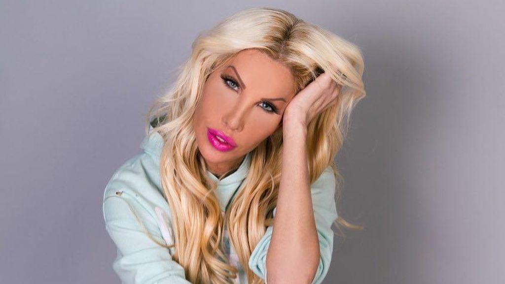 Wanita Transgender Habiskan Rp 13 M Demi Operasi Plastik Mirip Barbie