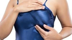 Gejala kanker payudara tidak hanya berupa benjolan. Faktanya, 1 dari 6 wanita didiagnosa kanker payudara selain karena benjolan. Berikut gejala lainnya: