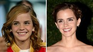 Tanpa Operasi Plastik, 10 Artis Ini Makin Cantik karena Perubahan Giginya