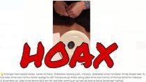 Video Potongan Kanker Jauhi Bawang, Dokter Sebut Tidak Masuk Akal