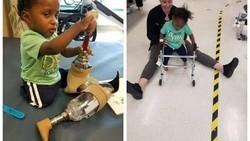 Karena sebuah kondisi langka, Jaylen Escalera terlahir dengan kondisi kaki dan tangan yang tak sempurna. Kakinya harus diamputasi.