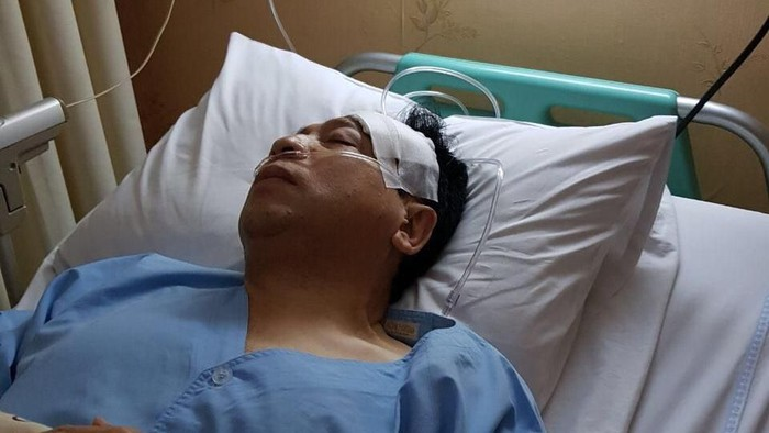 Beredar Foto Novanto Diperban Pasca Kecelakaan, Ini Penampakannya (Foto: Istimewa)