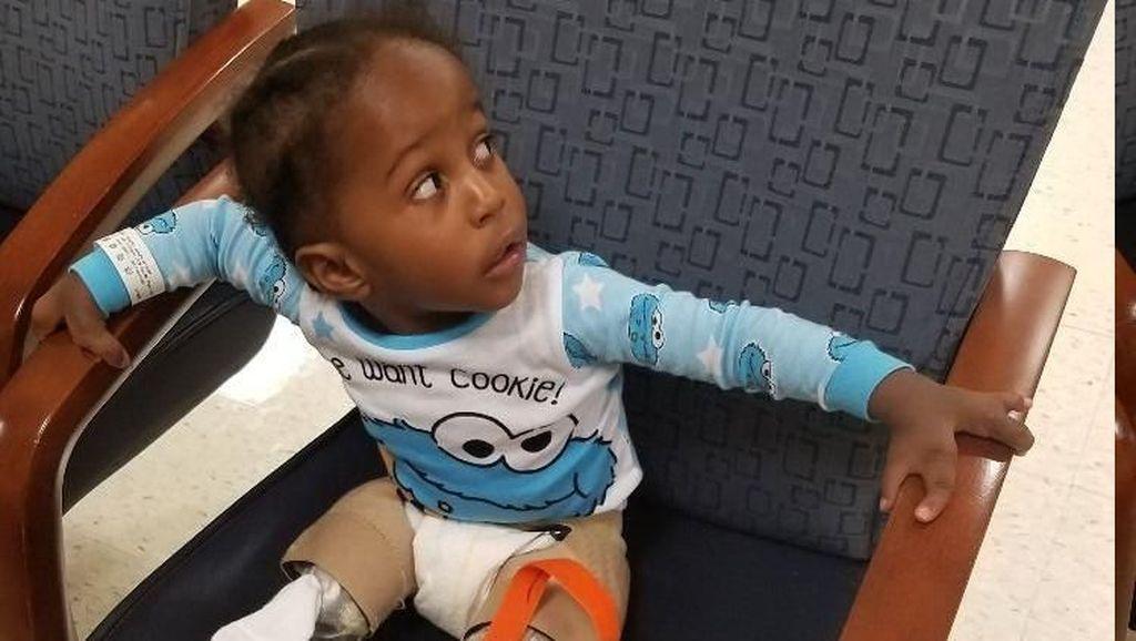 Kado Ultah Termanis Bocah yang Diamputasi Akibat Kondisi Langka