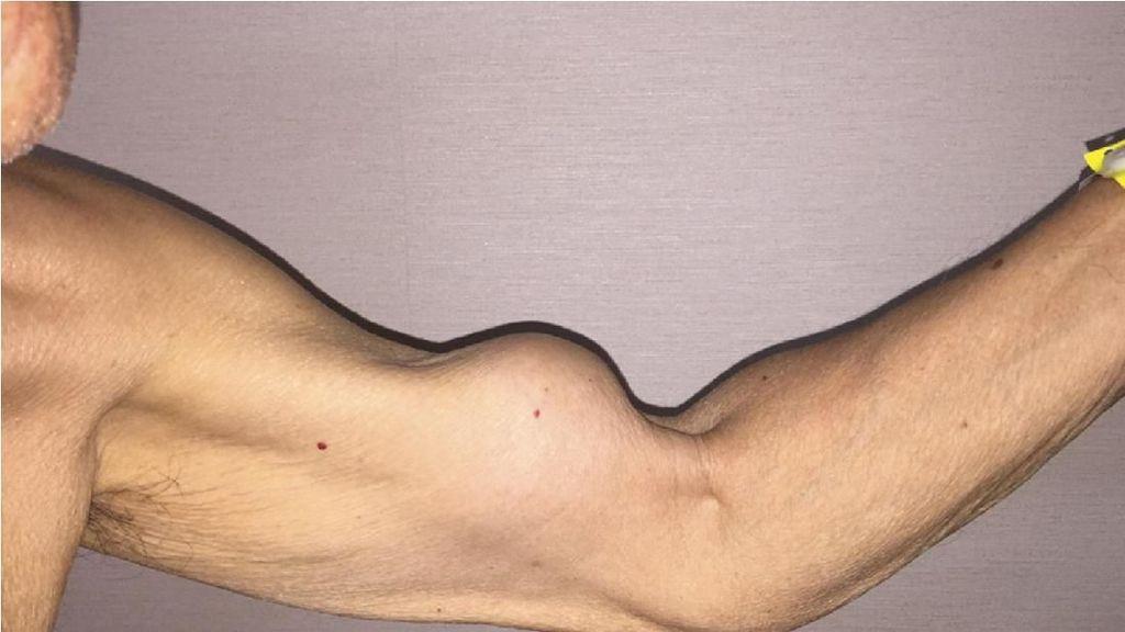 Lengan Pria Ini Jadi Besar Seperti Popeye Karena Ototnya Putus