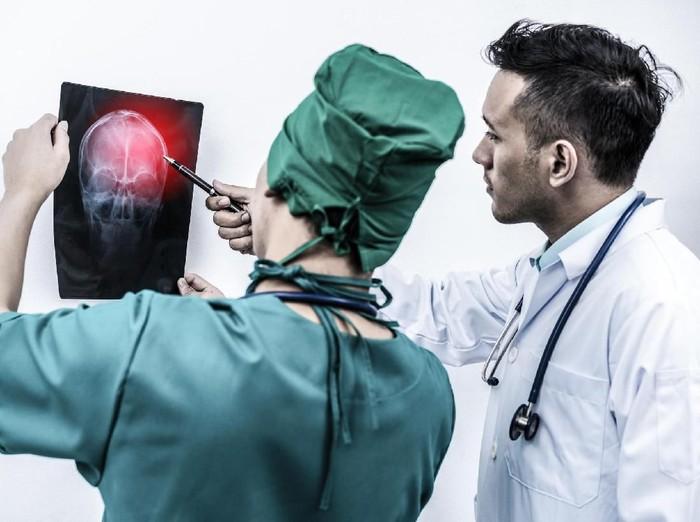 Terbentur bisa menyebabkan gegar otak baik ringan maupun berat. Foto: Thinkstock