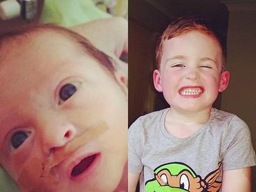 Ed yang lahir prematur sekarang udah berumur 3 tahun. Dia tumbuh jadi anak yang ceria dan lucu ya. (Foto: Instagram/ @clanofcleto)