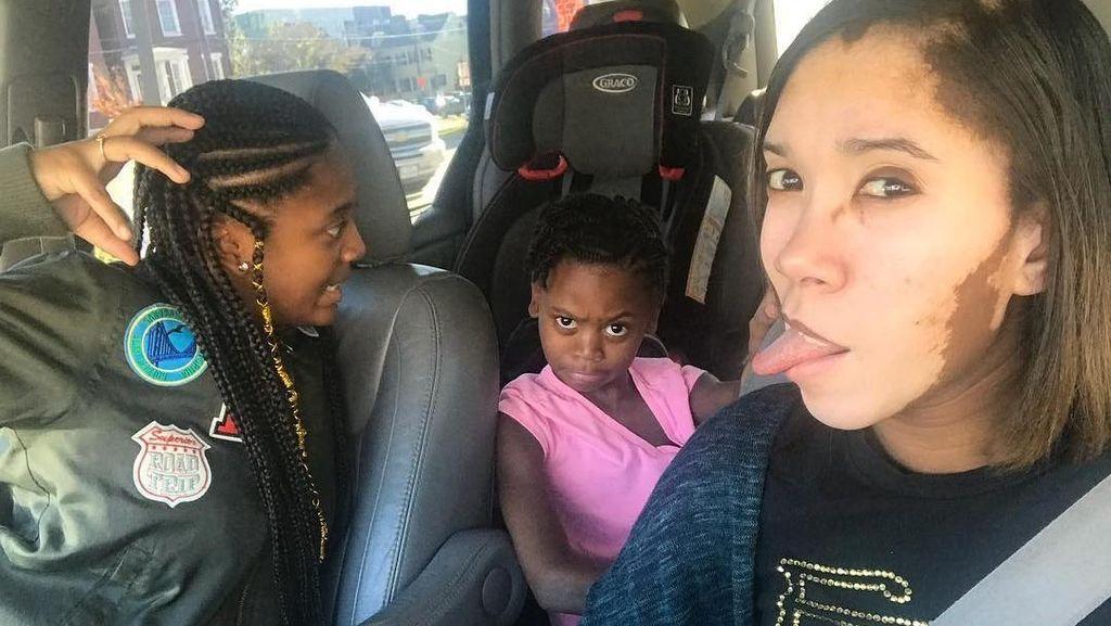 Kisah Sharekia, Tak Malu Sebut Dirinya Sapi Karena Vitiligo