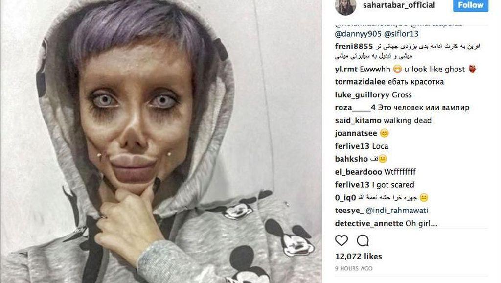 Viral karena Ngaku Operasi Plastik Mirip Jolie, Wanita Ini Ternyata Bohong