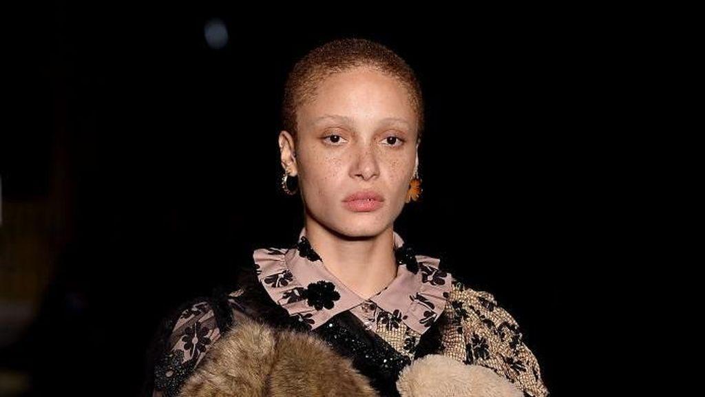 Kecantikan Unik Wanita Botak yang Kalahkan Gigi Hadid Jadi Model of The Year