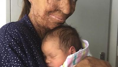 Cerita Ibu dengan Luka Bakar Saat Melahirkan Bayinya