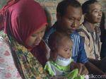 Menengok Bayi 6 Bulan Pengidap Kanker Kulit di Jepara