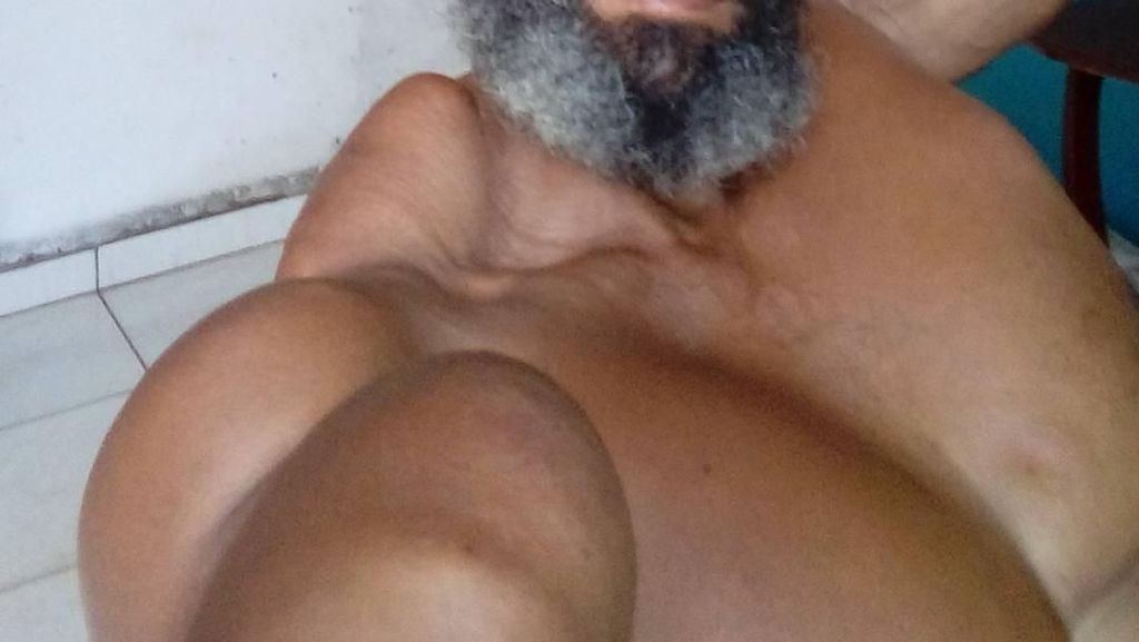 Foto Pria Berotot Karena Suntikan Minyak, Keren atau Seram?