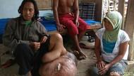 Kasihan, Warga Banyuwangi Ini Punya Benjolan di Kaki Seberat 60 Kg