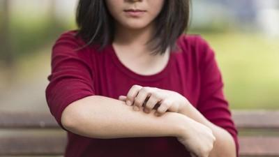 Fakta-fakta Alergi pada Anak yang Bunda Perlu Tahu
