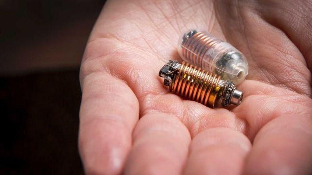 Pil Pendeteksi Kentut Ini Berguna Memonitor Kesehatan Pencernaan
