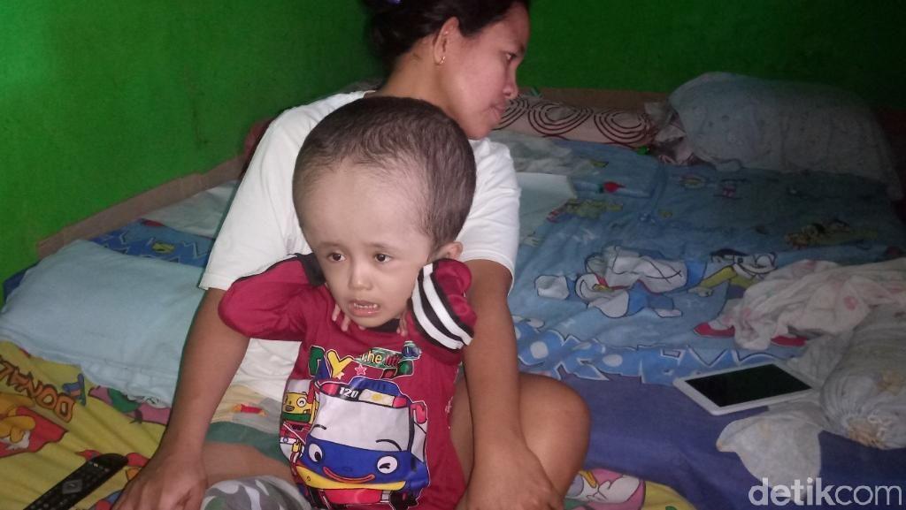 Kisah Rahman, Bocah Penderita Hidrosefalus asal Rancaekek Bandung