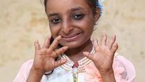 Dijuluki Gadis Tikus, Tinggi Gadis 18 Tahun Ini Cuma 84 Cm