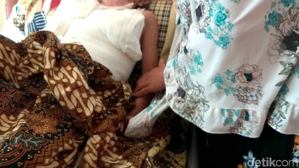 Kisah Pilu Rafi, Bocah 6 Tahun Alami Luka Bakar Akibat Kesetrum