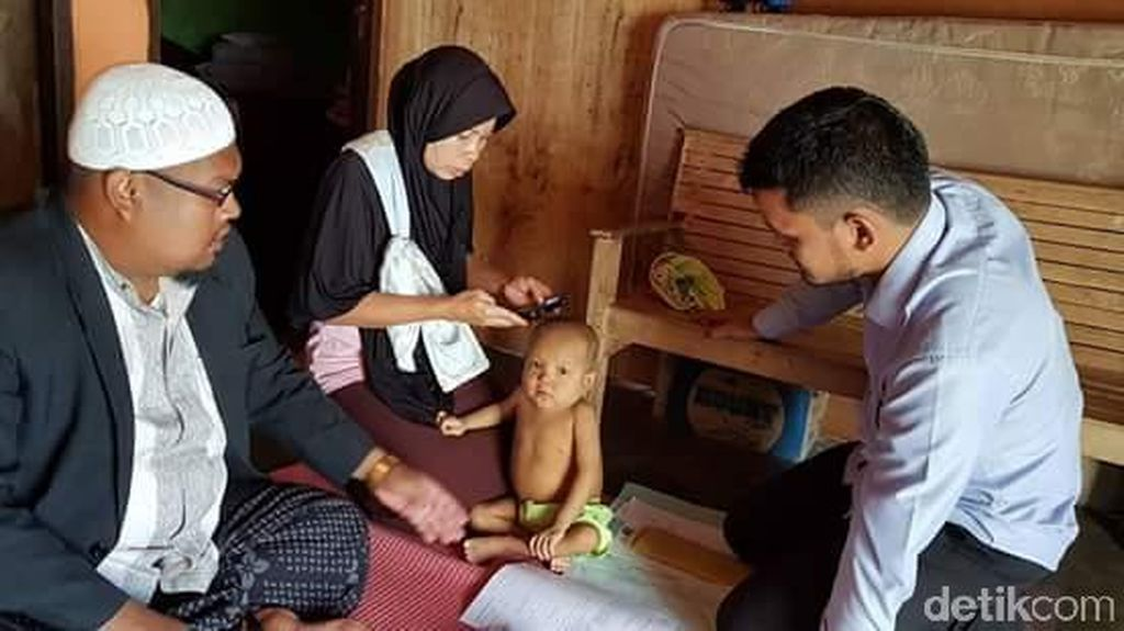 Akbar Penderita Atresia Bilier di Lhokseumawe Butuh Bantuan