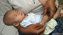 Kisah Bayi Usia 3 Bulan yang Telantar Bersama Neneknya di Bantul