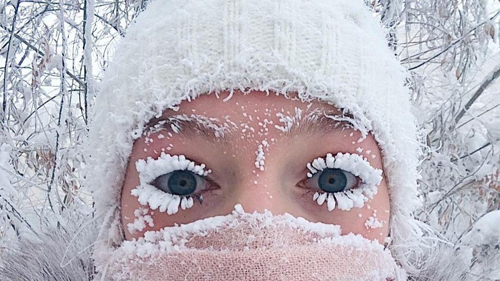 Cantik dan Unik, Bulu Mata Wanita Ini Dihiasi Salju