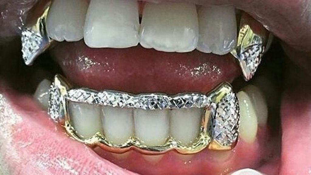 Foto Orang-orang dengan Gigi Emas Terunik, Mau Lihat?