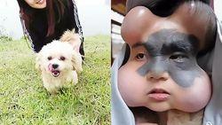 Khawatir Tanda Lahir Jadi Kanker, Wanita Ini Balonkan Wajahnya