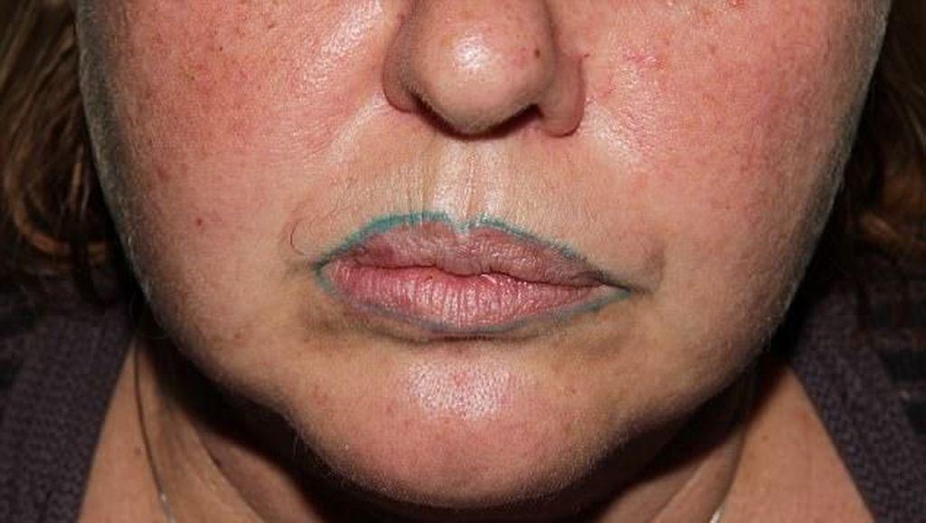 Gara-gara Tato Bibir, Wanita Ini Merasa Jadi Mirip Badut