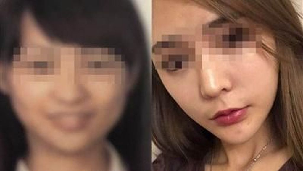 Terlalu Cantik Pasca Operasi Plastik, Wanita Ini Ditolak Naik Pesawat