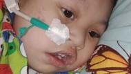 Bermula dari Tokso, Anak 2,5 Tahun Ini Masih Seperti Bayi