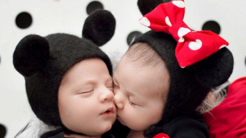 Gemas Banget! Saat Bayi Baru Lahir Jadi Mickey dan Minnie Mouse