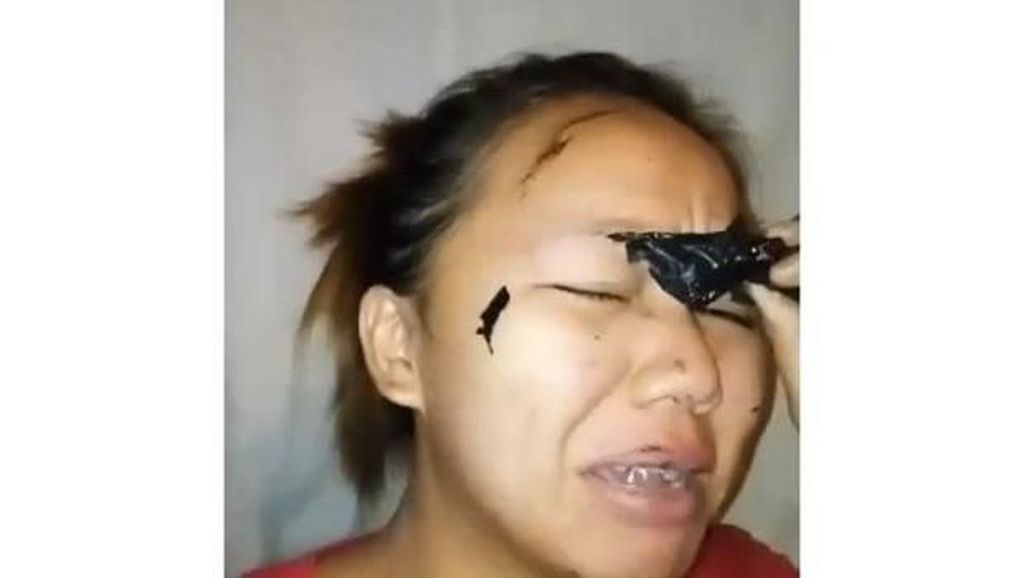 Pakai Masker Peel Off, Alis Wanita Ini Ikut Tercabut Hingga Hampir Botak