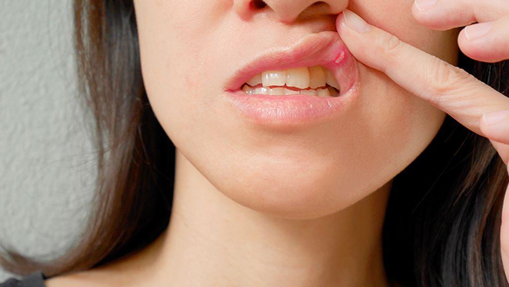 Albothyl Dilarang, Ini Pilihan Pembaca untuk Sembuhkan Sariawan