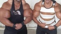 Cerita Dua Bersaudara yang Demi Otot Suntikkan Bahan Kimia Berbahaya