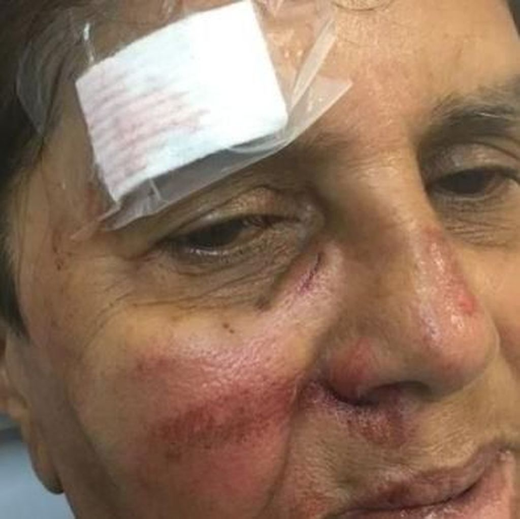 Kendarai Skuter, Perempuan Lansia di Australia Diserang Geng Remaja