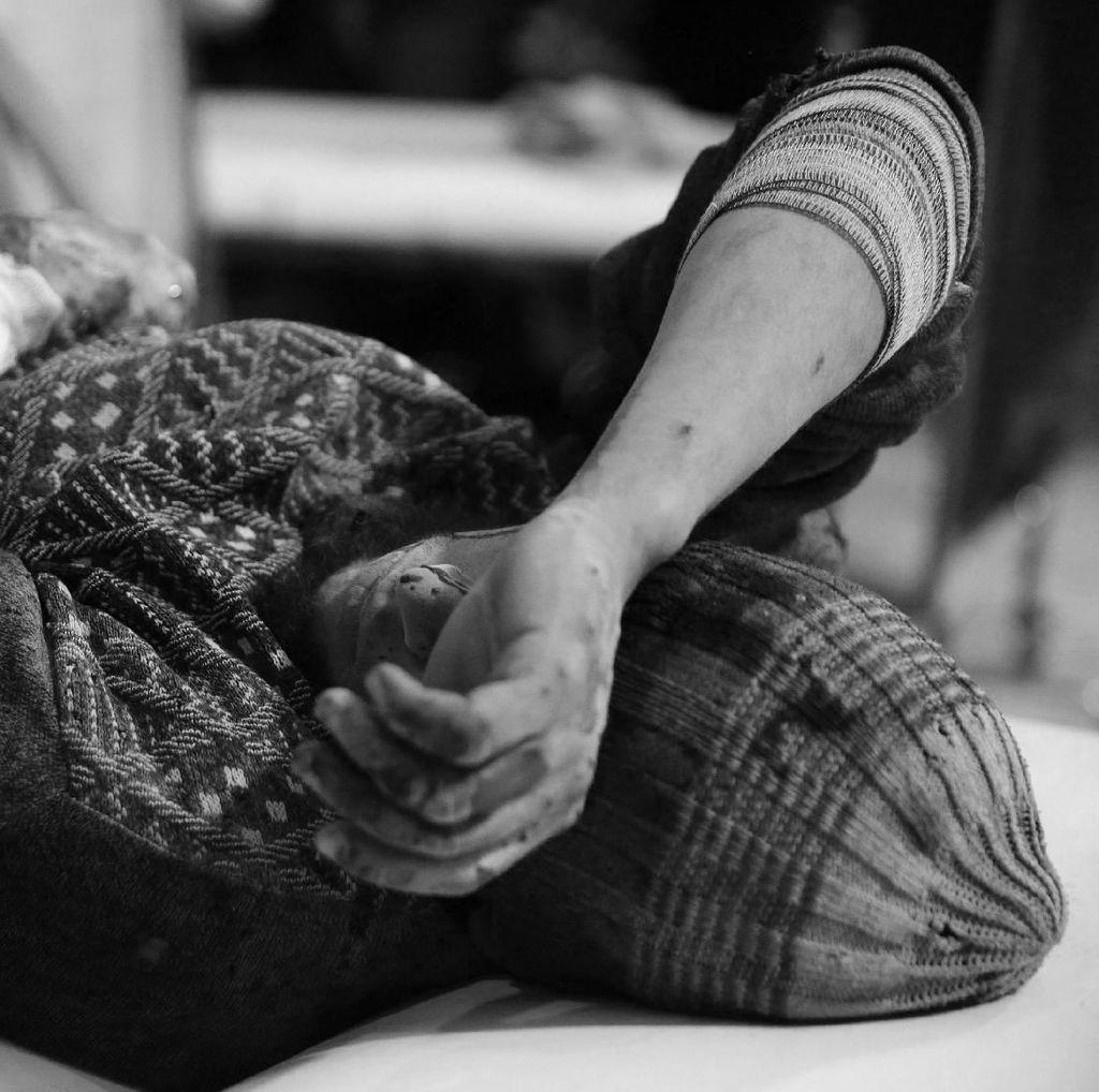 Warga Sipil Korban Perang Suriah Terus Berjatuhan