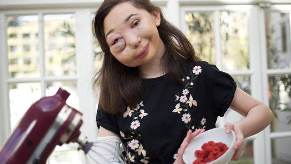 Gadis yang Menangis Darah Ini Diobati dengan Obat Kanker