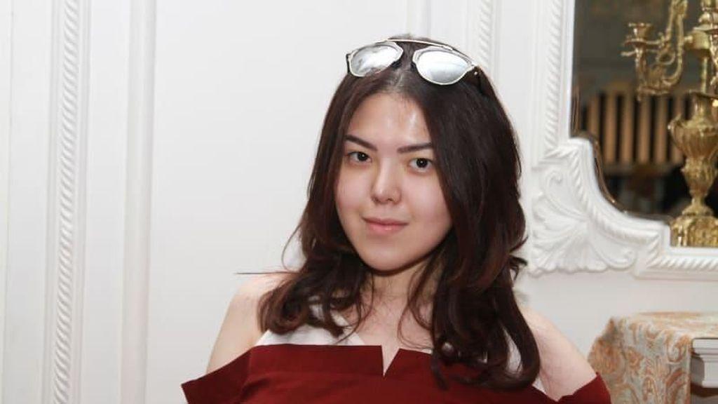 Karena Pakai Sendal Jepit, Tina Toon Ditolak Masuk Restoran Mewah Ini