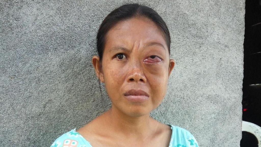 Tak Ada Biaya, Yuliastri Sudah 4 Tahun Hidup dengan Kanker Mata
