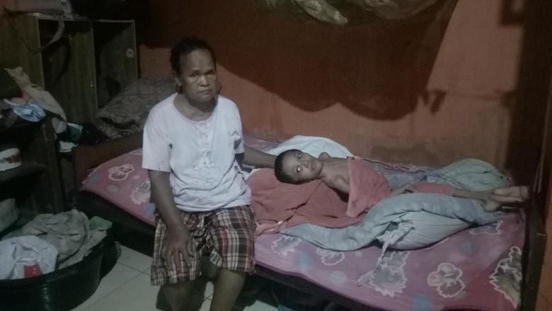 Pilu dari Makassar! Arianti Sudah 16 Tahun Idap Hidrosefalus