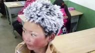 Bocah China Berambut Es Dikeluarkan dari Sekolah Barunya, Kenapa?