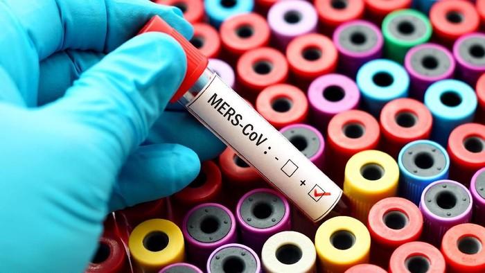 Badan Kesehatan Dunia (WHO) mengeluarkan laporan terbaru analisa virus-virus berbahaya apa saja yang perlu diwaspadai di tahun 2018 ini. Foto: ilustrasi/thinkstock