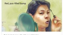Berbagai Ilustrasi Random Tentang Penyakit yang Bikin Dahi Berkerut