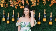 Gara-gara Kendall Jenner Jarang Pakai Bra, Operasi Puting Jadi Tren