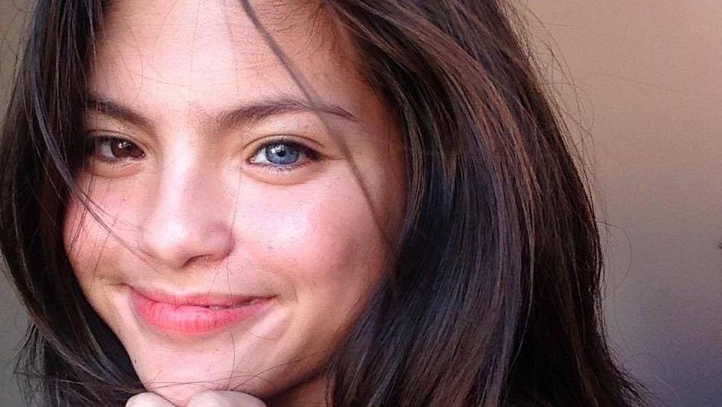 Foto: Cantiknya Julia Ostan, Remaja yang Punya 2 Warna Mata Berbeda