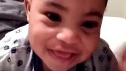 Bocah 2 Tahun Punya Tanda Lahir Lucu dan Langka di Rambutnya