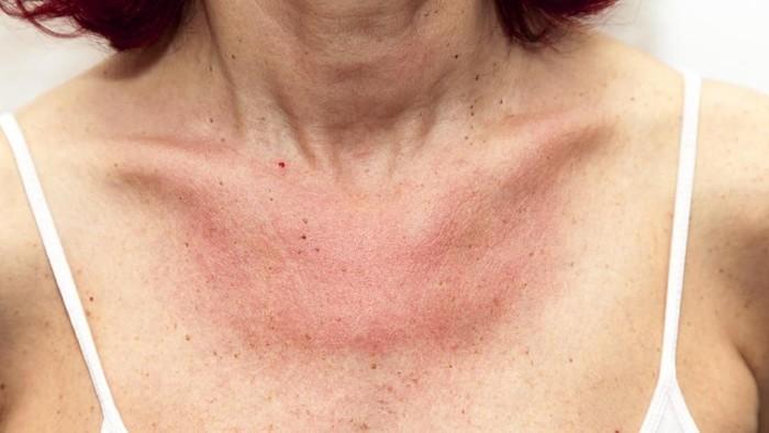 Bekas alergi yang membuat kulit terlihat gosong, bagaimana ya cara menghilangkannya?  Foto: ilustrasi/thinkstock