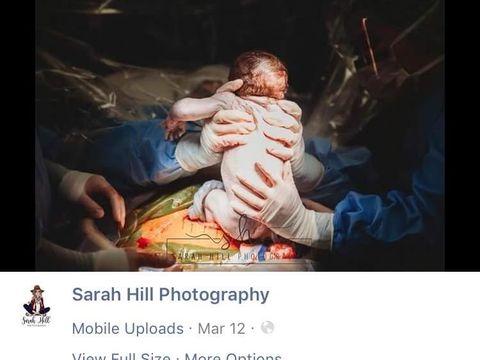 Ibu yang melahirkan caesar dan menarik sendiri bayinya
