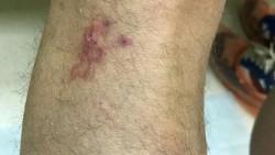 Ada beberapa jenis cacing yang bisa menginfeksi jadi parasit bagi manusia. Ketika cacing-cacing ini hidup di kulit tanda-tandanya dapat terlihat seperti ini.